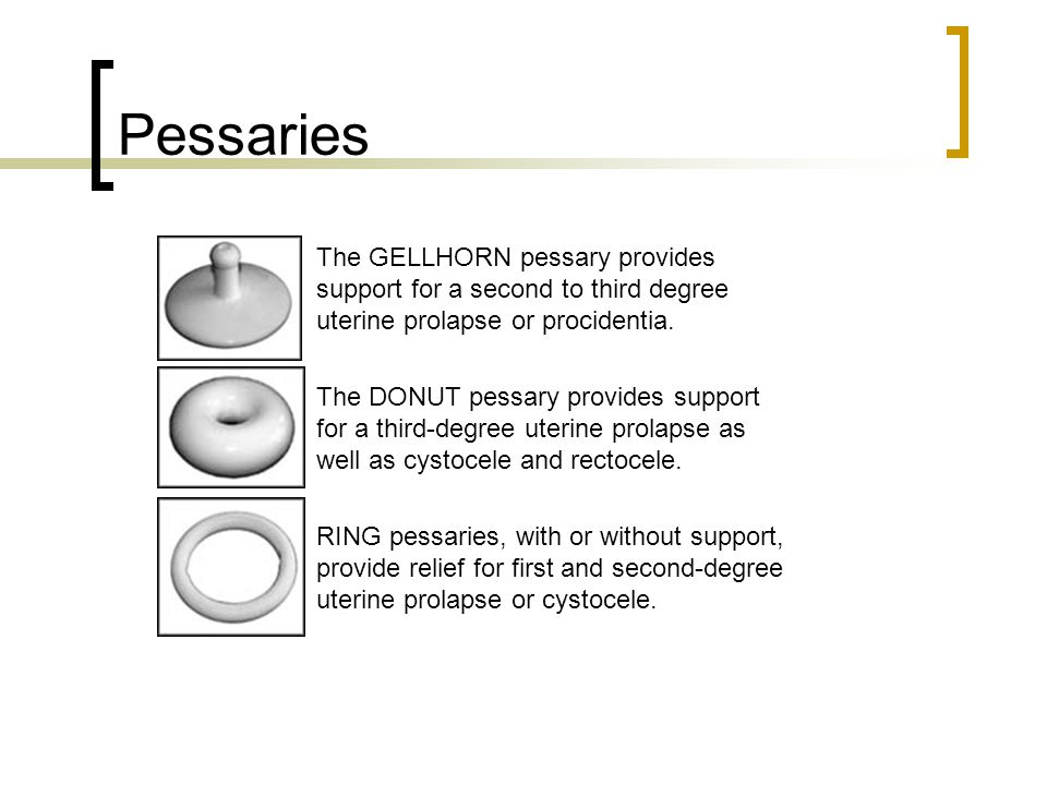 Uterine Prolapse Pessary degree uterine prolapse or