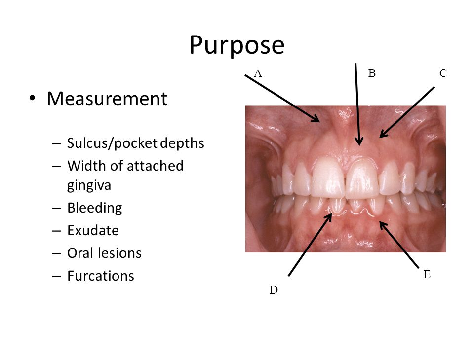 Periodontal Probe Measurements Purpose Measurement