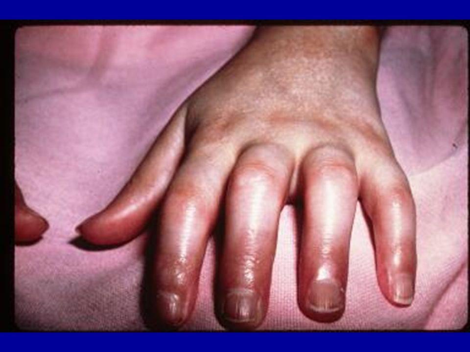 Pediatric systemic lupus erythematosus pediatric rheumatology red 14 mucocutaneous manifestations frequency 76 malar rash discoid lupus vasculitis purpura petechiae raynauds phenomenon nail involvement alopecia sciox Image collections