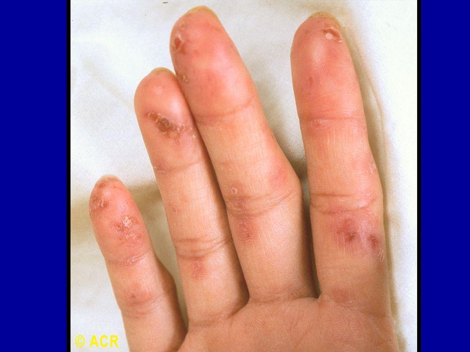 Pediatric systemic lupus erythematosus pediatric rheumatology red 36 systemic lupus erythematosus vasculitis fingers sciox Image collections