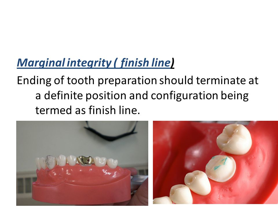 Marginal integrity ( finish line) Ending of tooth preparation should terminate at a definite position and configuration being termed as finish line.