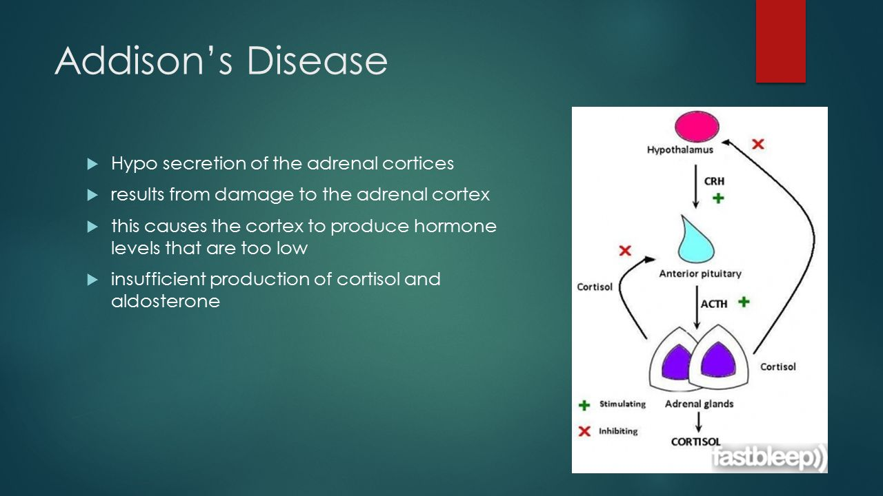 Addison's Disease  Hypo secretion of the adrenal cortices  results from damage to the adrenal cortex  this causes the cortex to produce hormone levels that are too low  insufficient production of cortisol and aldosterone