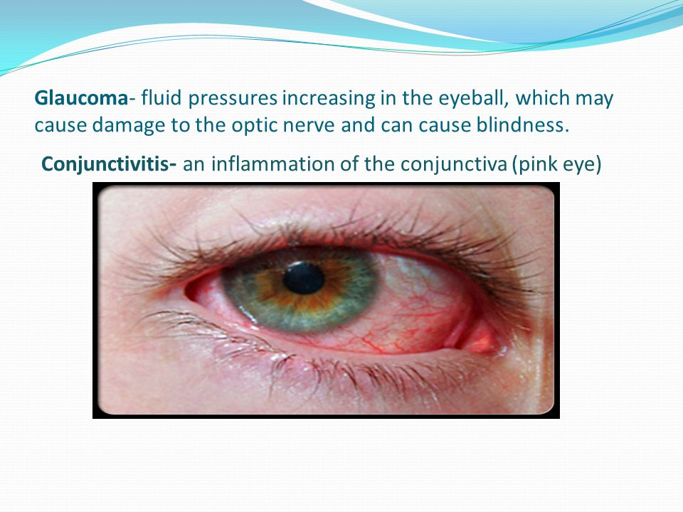 Glaucoma- fluid pressures increasing in the eyeball, which may cause damage to the optic nerve and can cause blindness.