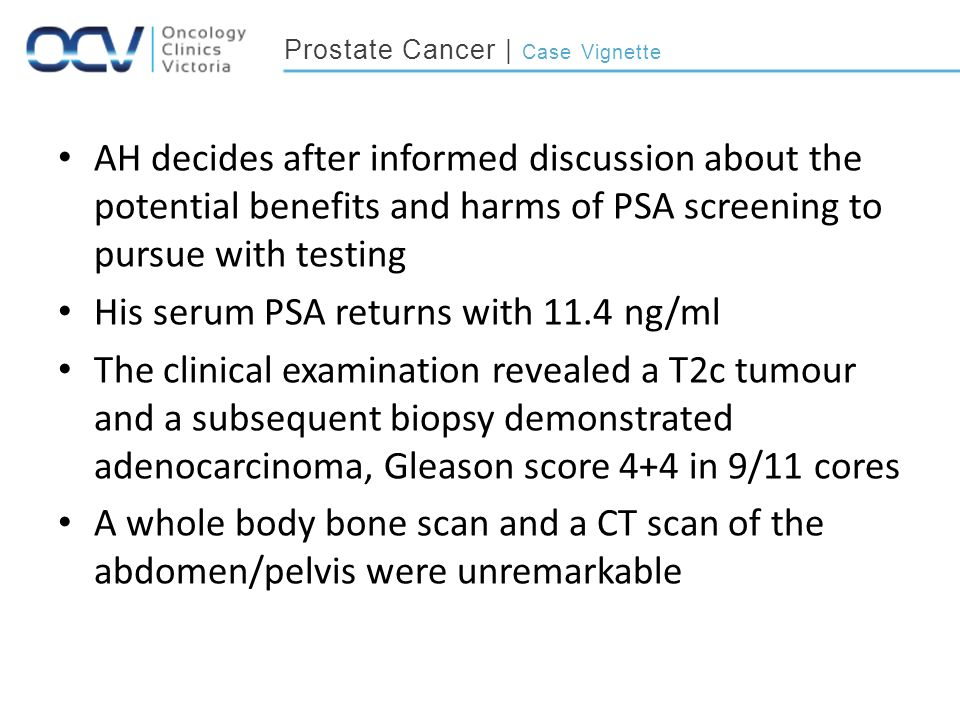 Prostate Cancer | Case Vignette AH decides after informed discussion about the potential benefits and harms of PSA screening to pursue with testing His serum PSA returns with 11.4 ng/ml The clinical examination revealed a T2c tumour and a subsequent biopsy demonstrated adenocarcinoma, Gleason score 4+4 in 9/11 cores A whole body bone scan and a CT scan of the abdomen/pelvis were unremarkable
