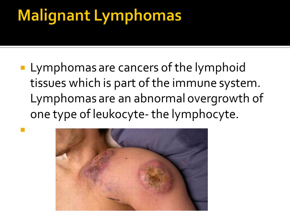  Lymphomas are cancers of the lymphoid tissues which is part of the immune system.