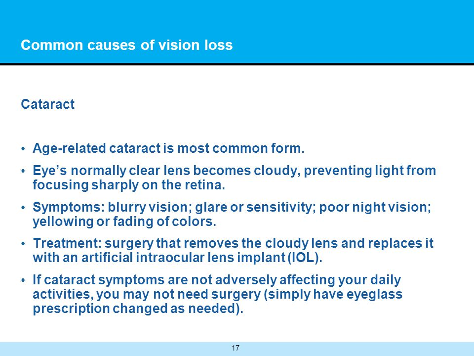 17 Common causes of vision loss Cataract Age-related cataract is most common form.