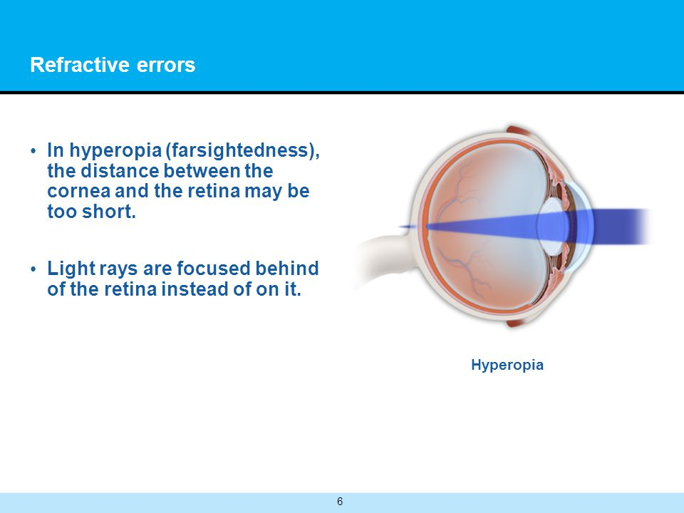 6 Refractive errors In hyperopia (farsightedness), the distance between the cornea and the retina may be too short.