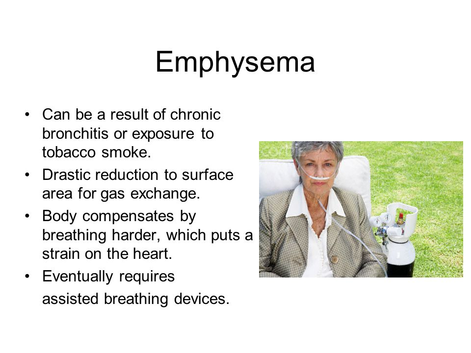 Emphysema Can be a result of chronic bronchitis or exposure to tobacco smoke.