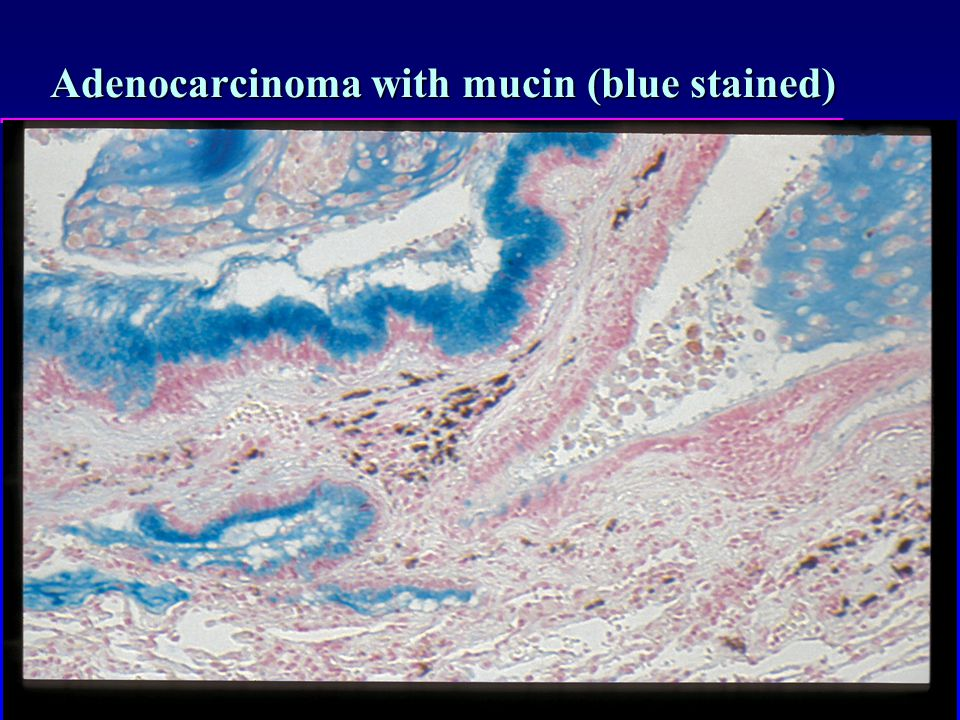 Adenocarcinoma with mucin (blue stained)