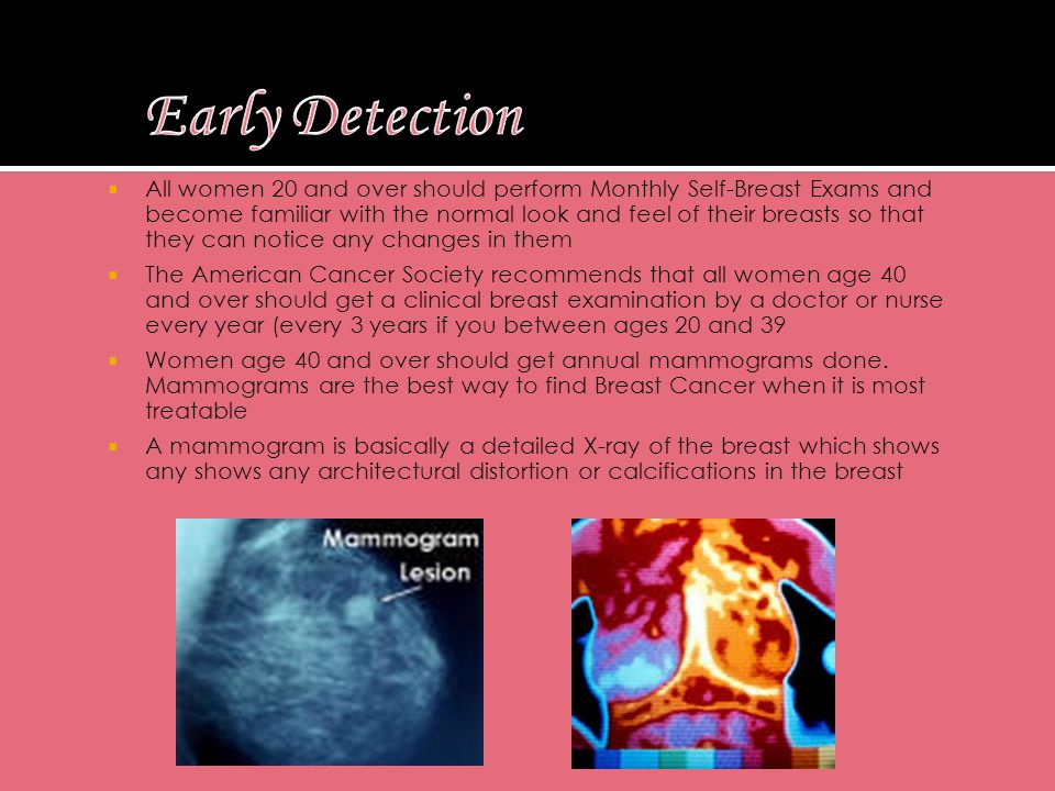  All women 20 and over should perform Monthly Self-Breast Exams and become familiar with the normal look and feel of their breasts so that they can notice any changes in them  The American Cancer Society recommends that all women age 40 and over should get a clinical breast examination by a doctor or nurse every year (every 3 years if you between ages 20 and 39  Women age 40 and over should get annual mammograms done.