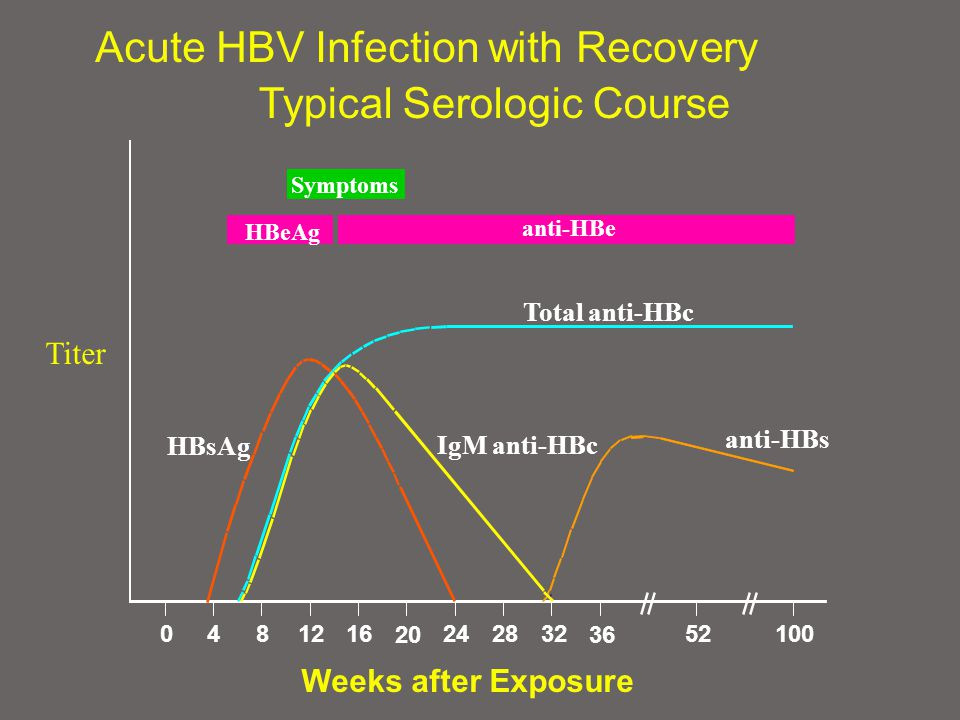 Symptoms HBeAg anti-HBe Total anti-HBc IgM anti-HBc anti-HBs HBsAg Acute HBV Infection with Recovery Typical Serologic Course Weeks after Exposure Titer