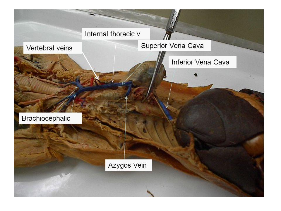 Azygos Vein Superior Vena Cava Brachiocephalic Internal thoracic v Vertebral veins Inferior Vena Cava