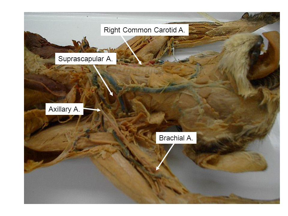 Axillary A. Suprascapular A. Right Common Carotid A. Brachial A.