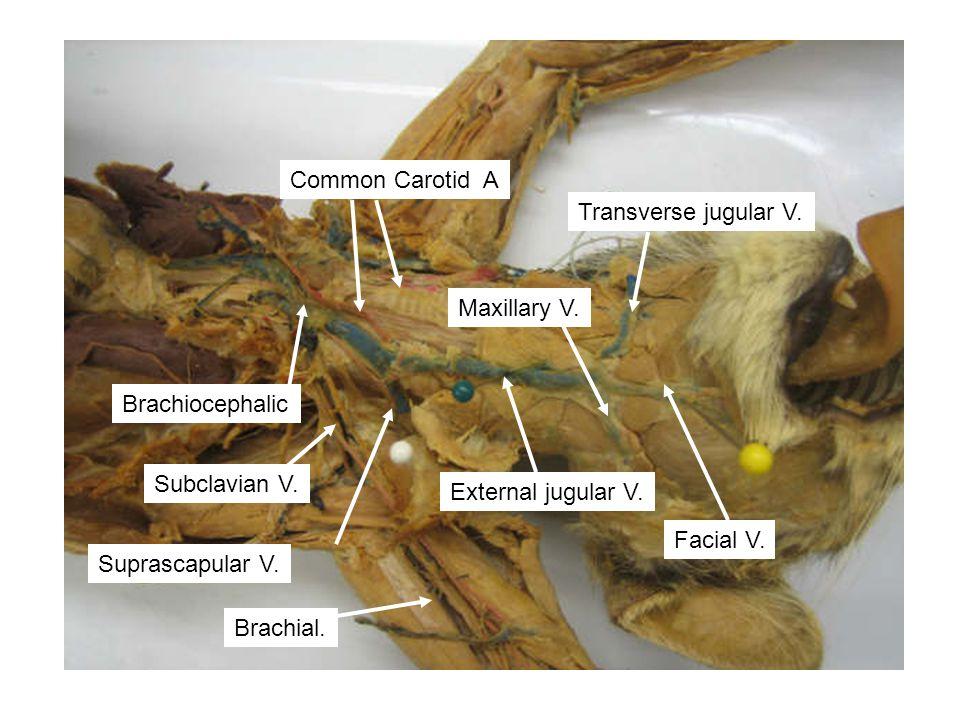 Brachiocephalic Subclavian V. External jugular V. Transverse jugular V. Maxillary V. Facial V. Common Carotid A Brachial. Suprascapular V.