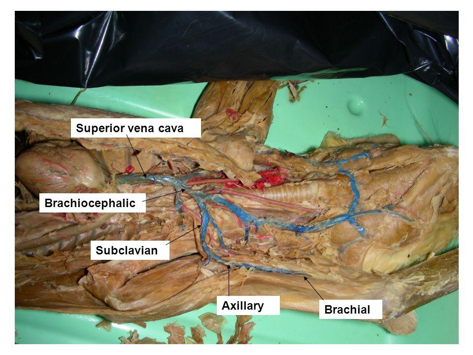 Brachial Axillary Superior vena cava Subclavian Brachiocephalic