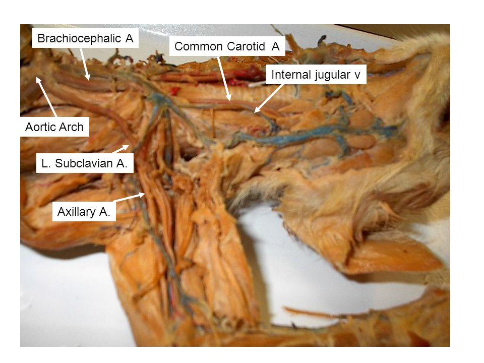 Axillary A. Aortic Arch L. Subclavian A. Axillary A.Common Carotid A Brachiocephalic A Internal jugular v