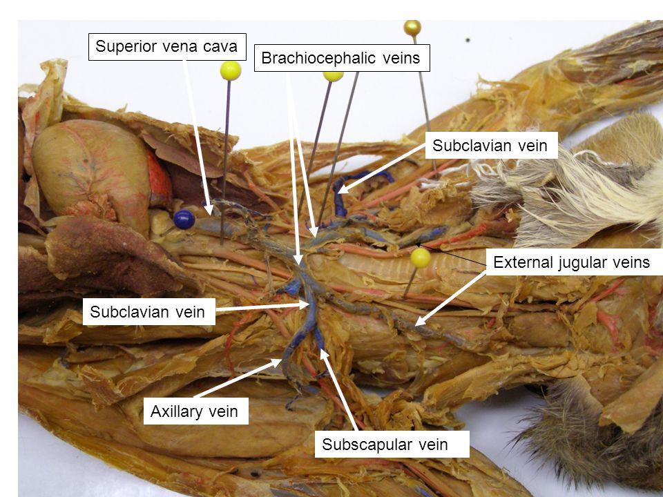 External jugular veins Superior vena cava Brachiocephalic veins Subclavian vein Subscapular vein Axillary vein
