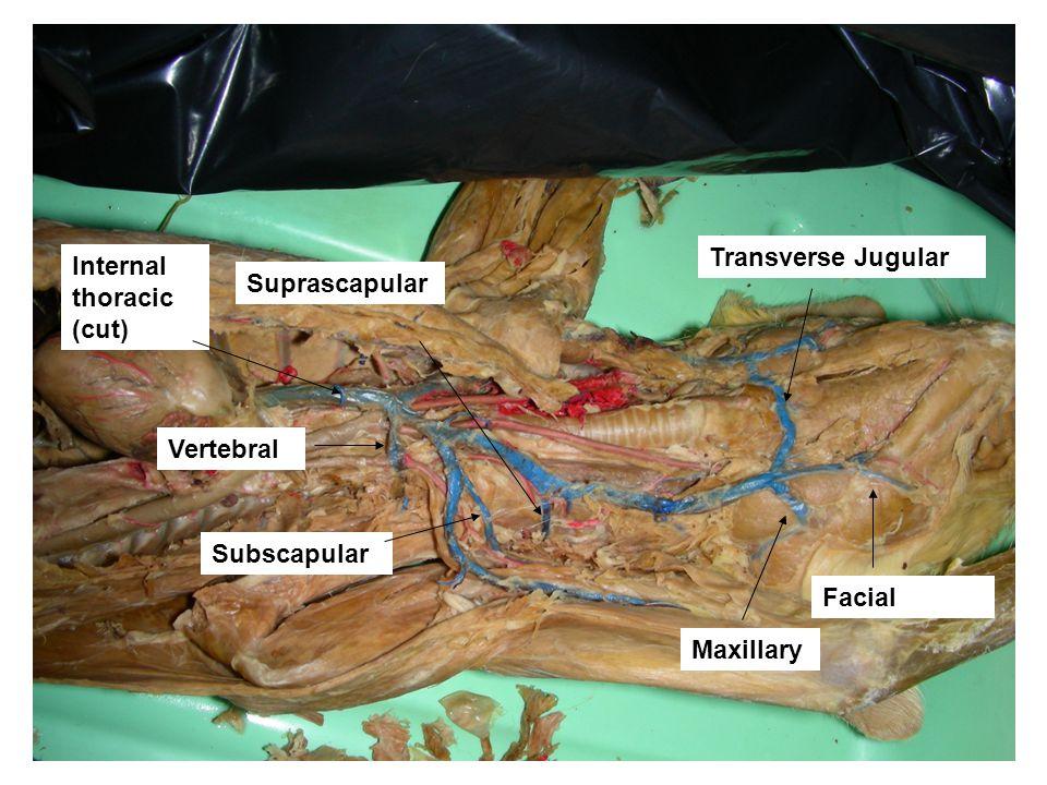 Transverse Jugular Facial Maxillary Suprascapular Subscapular Vertebral Internal thoracic (cut)