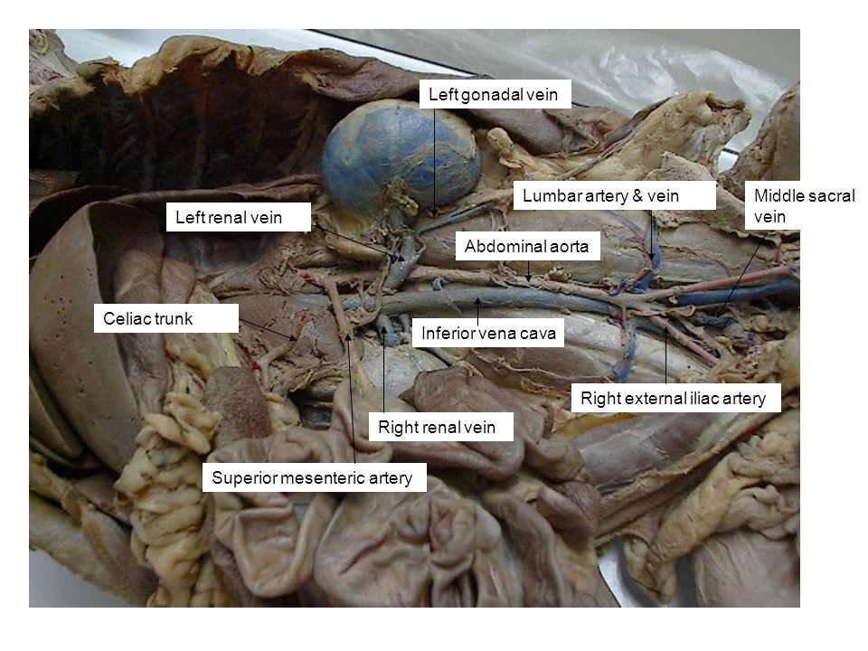 Left renal vein Lumbar artery & vein Celiac trunk Superior mesenteric artery Right renal vein Left gonadal vein Inferior vena cava Abdominal aorta Rig