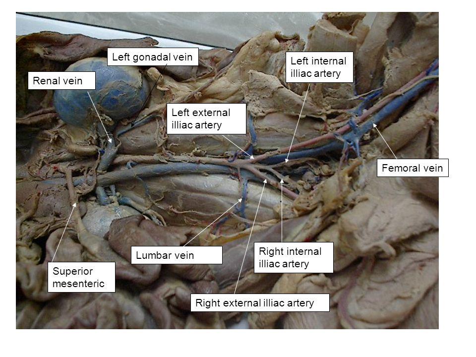 Renal vein Left gonadal vein Lumbar vein Right external illiac artery Left external illiac artery Femoral vein Right internal illiac artery Left inter