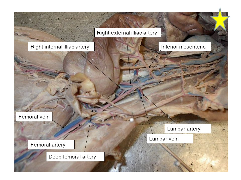 Lumbar vein Lumbar artery Right external illiac artery Right internal illiac artery Deep femoral artery Femoral artery Femoral vein Inferior mesenteri