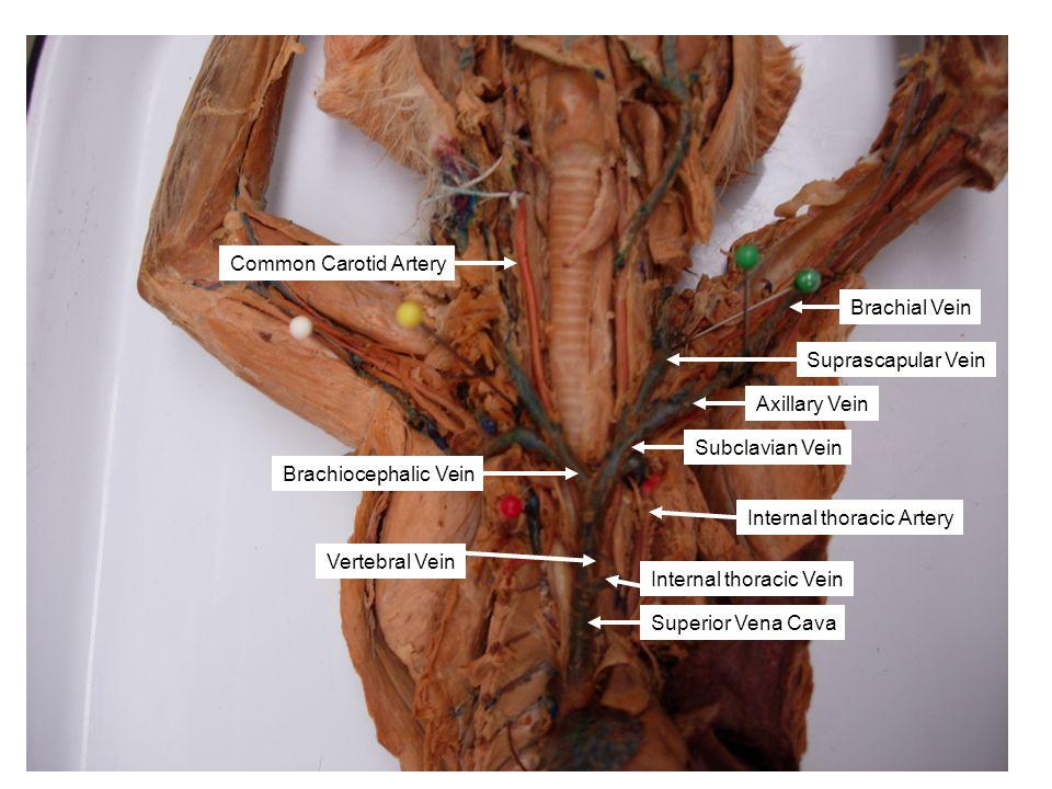 Superior Vena Cava Subclavian Vein Suprascapular Vein Vertebral Vein Common Carotid Artery Axillary Vein Brachial Vein Brachiocephalic Vein Internal t