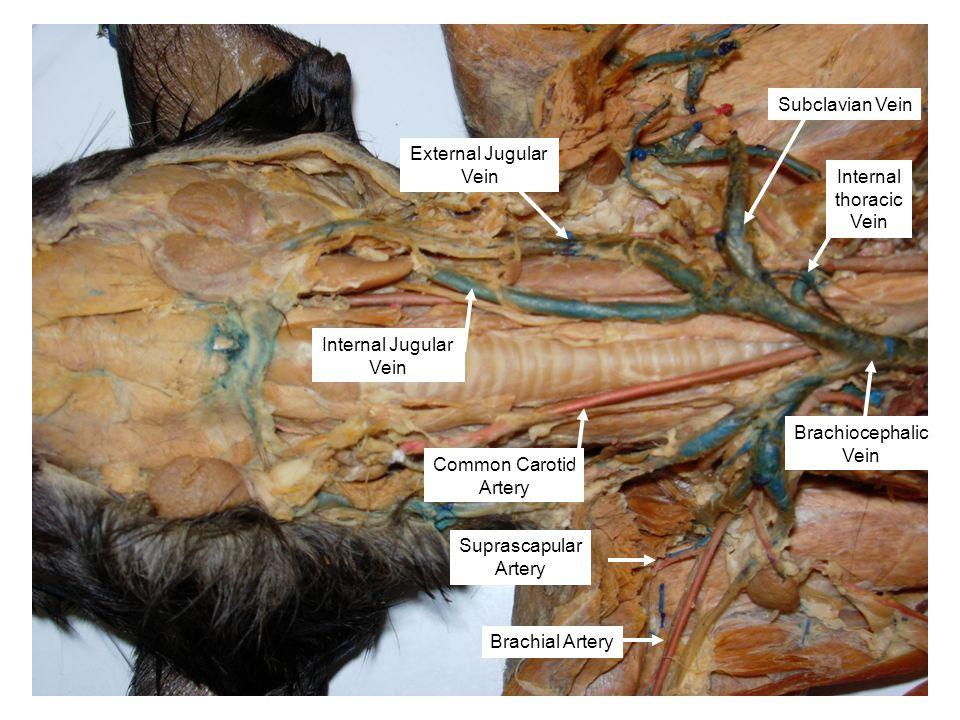 Common Carotid Artery Brachiocephalic Vein Subclavian Vein Internal Jugular Vein Internal thoracic Vein Brachial Artery Suprascapular Artery