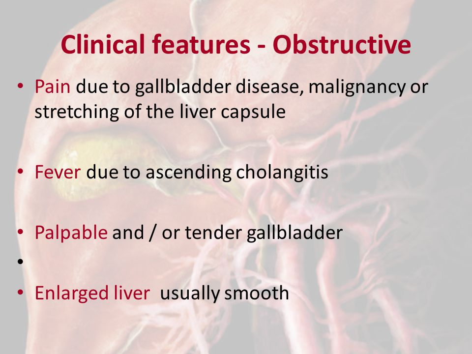 Clinical features - Obstructive Pain due to gallbladder disease, malignancy or stretching of the liver capsule Fever due to ascending cholangitis Palpable and / or tender gallbladder Enlarged liver usually smooth