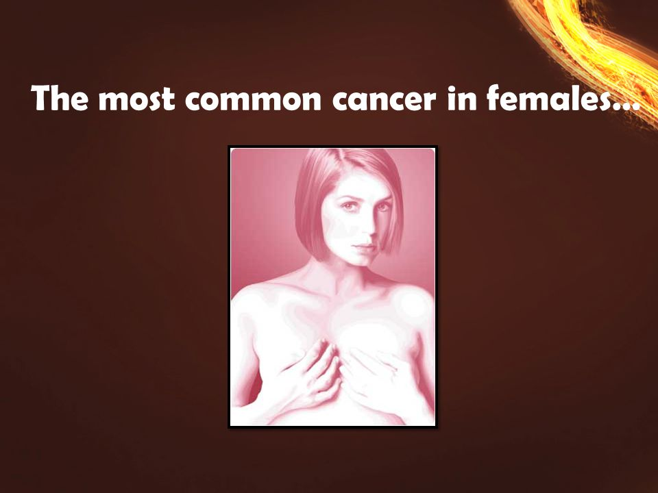 The most common cancer in females…
