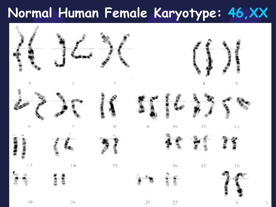 Normal Human Male Karyotype: 46,XY