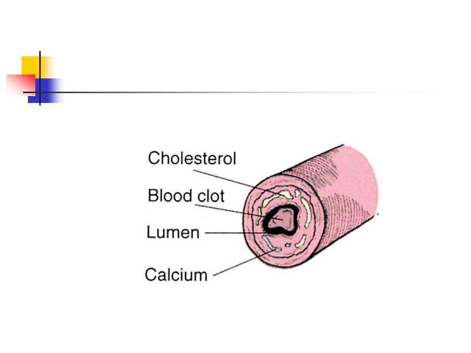 could lipitor cause hemangioma