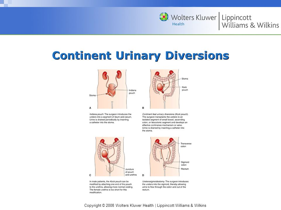 Copyright © 2008 Wolters Kluwer Health | Lippincott Williams & Wilkins Continent Urinary Diversions