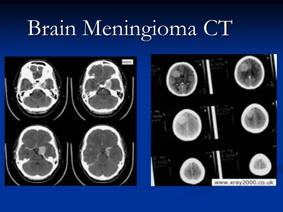 Brain Meningioma CT