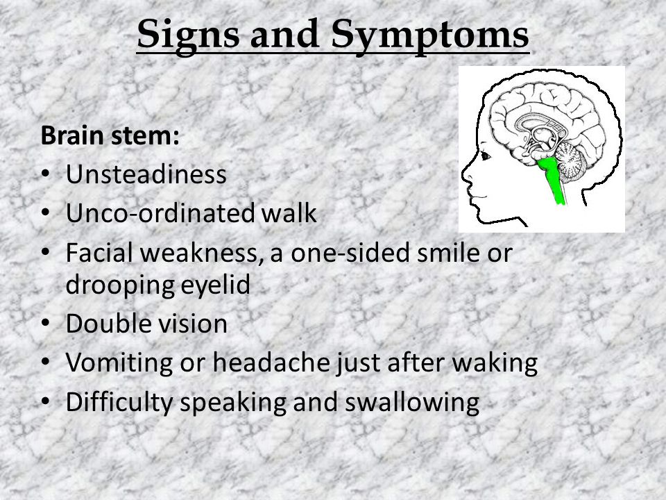 Signs and Symptoms Brain stem: Unsteadiness Unco-ordinated walk Facial weakness, a one-sided smile or drooping eyelid Double vision Vomiting or headache just after waking Difficulty speaking and swallowing