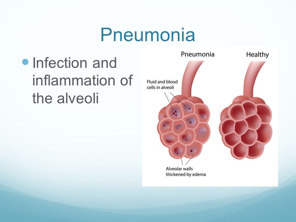Pneumonia Infection and inflammation of the alveoli