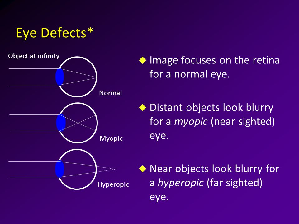 Eye Defects* u Image focuses on the retina for a normal eye.