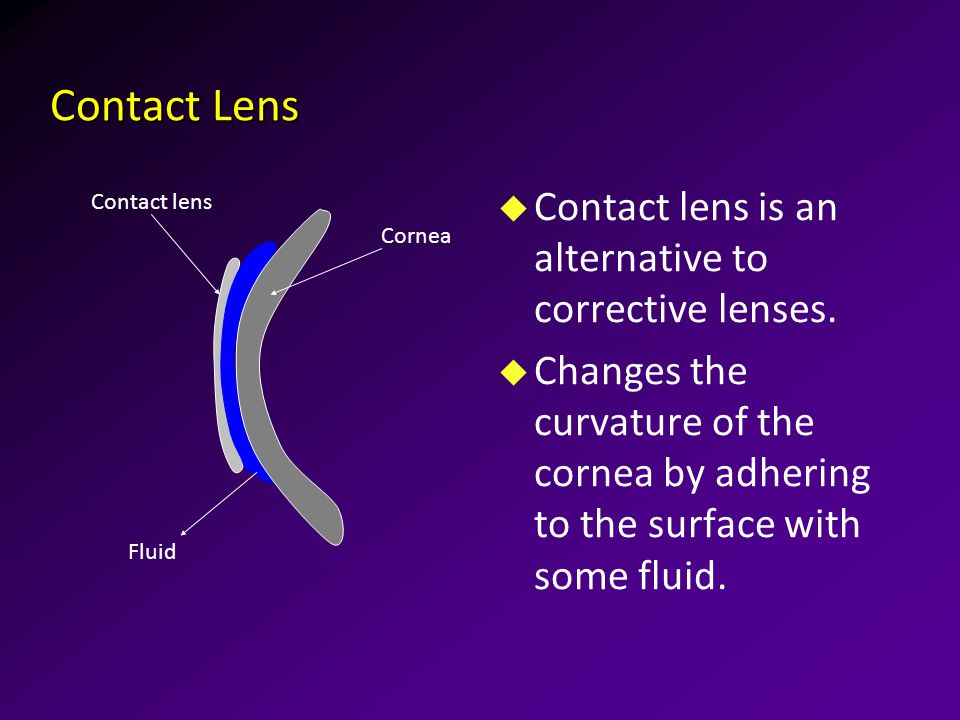 Contact Lens u Contact lens is an alternative to corrective lenses.