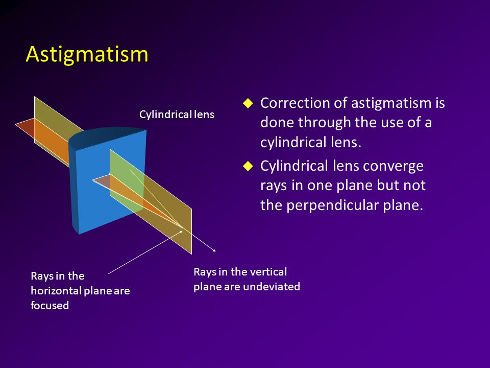 Astigmatism u Correction of astigmatism is done through the use of a cylindrical lens.