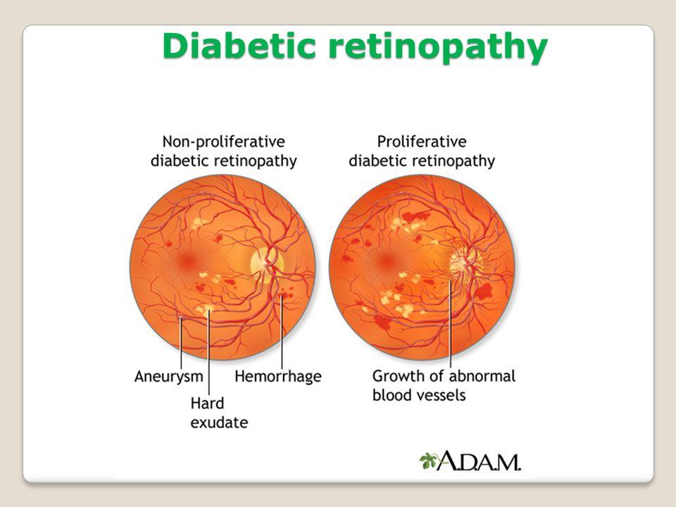 36 Diabetic retinopathy  sc 1 st  SlidePlayer : fundoscopy silver wiring - yogabreezes.com