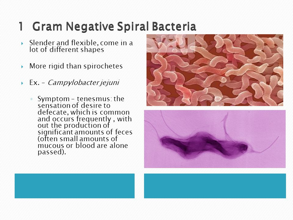 a classification of bacteria Classification of bacteria lecture 23 - duration: 23:42 help tv 2,934 views 23:42 gram positive vs gram negative bacteria - duration: 9:19.