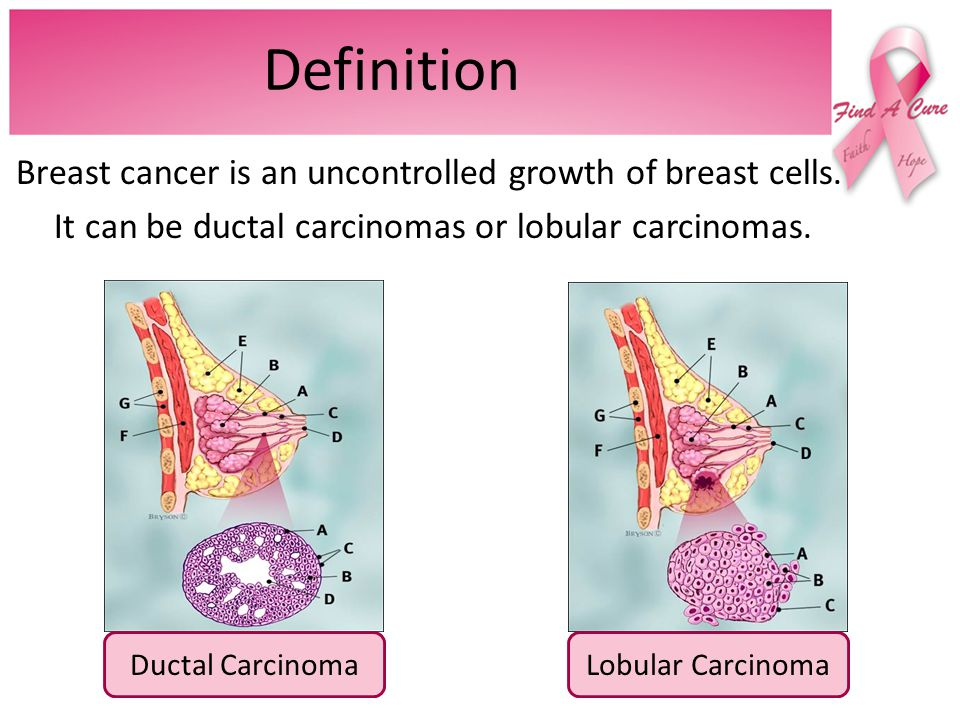 definition+of+breast+cancer