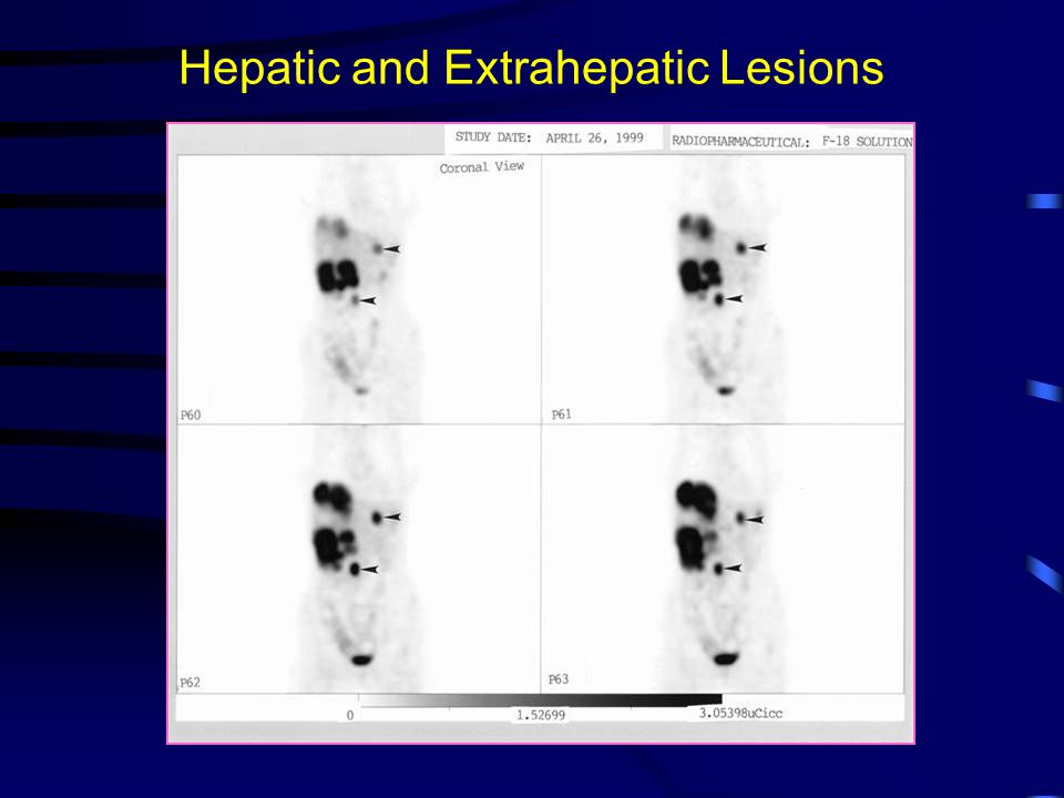 Hepatic and Extrahepatic Lesions