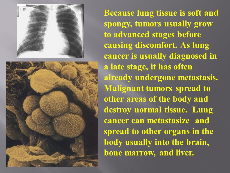 Facts About Lung Cancer Facts About Lung Cancer  More than 150,000 Americans died from lung cancer in 2005.