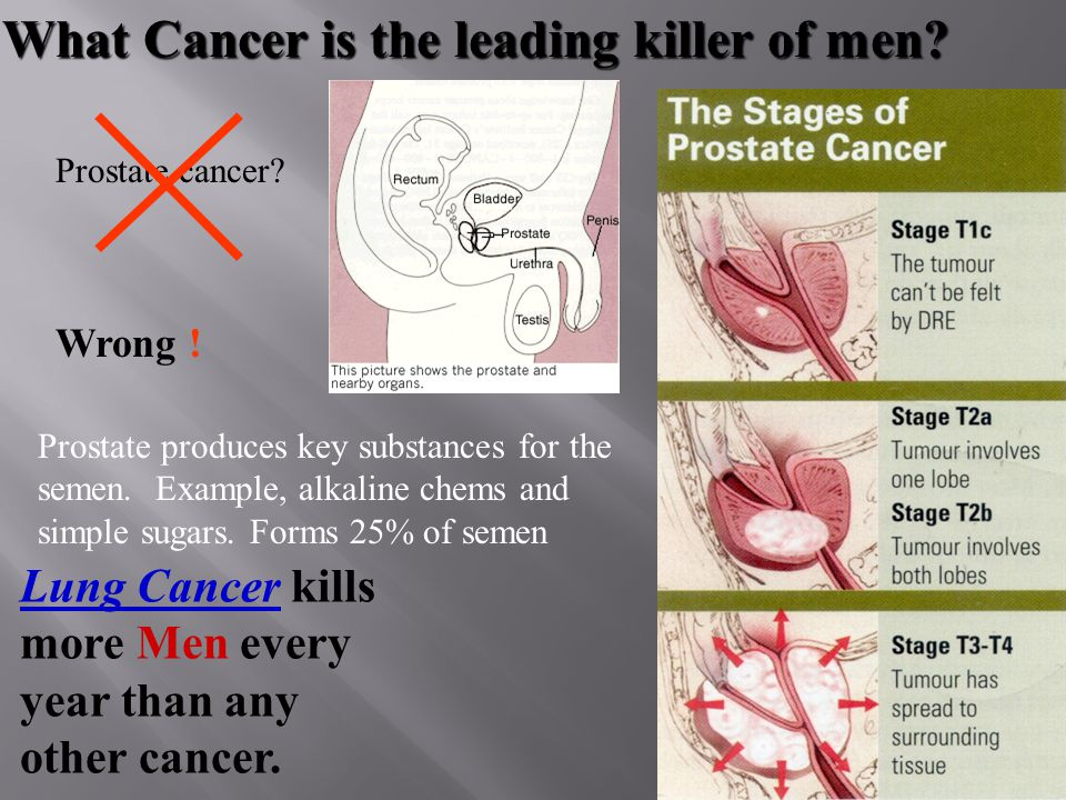 What Cancer is the leading killer of women. Breast cancer.