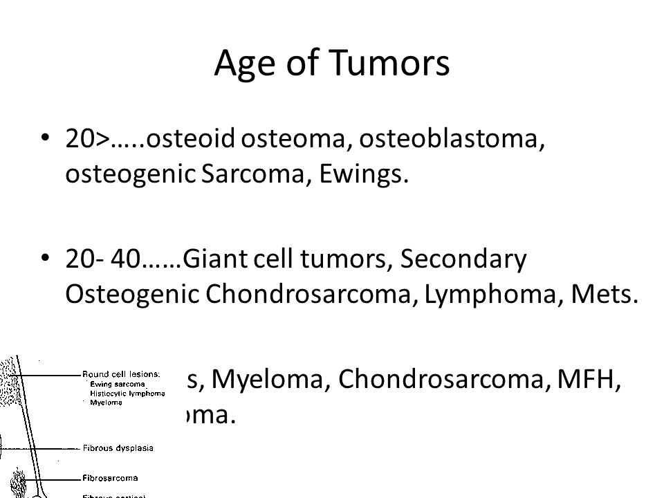 Age of Tumors 20>…..osteoid osteoma, osteoblastoma, osteogenic Sarcoma, Ewings.