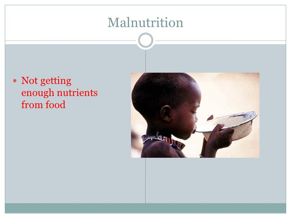 Malnutrition Not getting enough nutrients from food