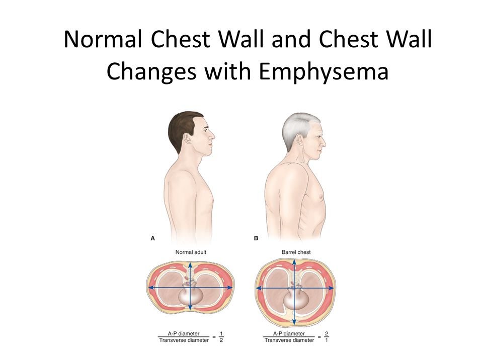 Normal Chest Wall and Chest Wall Changes with Emphysema