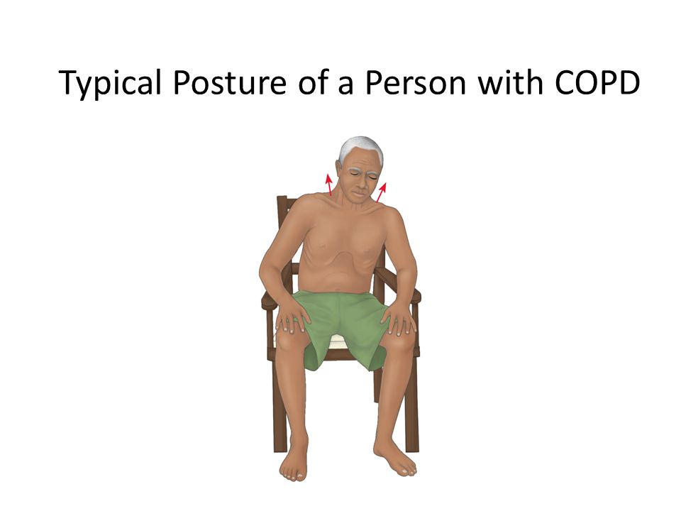 Typical Posture of a Person with COPD
