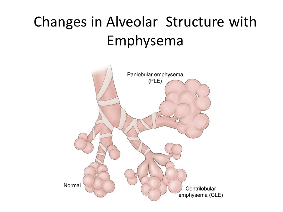 Changes in Alveolar Structure with Emphysema