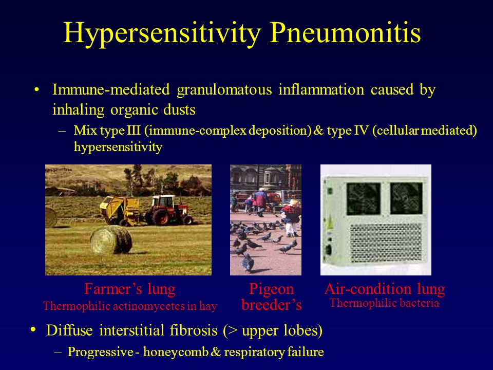 Hypersensitivity Pneumonitis Immune-mediated granulomatous inflammation caused by inhaling organic dusts –Mix type III (immune-complex deposition) & type IV (cellular mediated) hypersensitivity Farmer's lung Thermophilic actinomycetes in hay Pigeon breeder's Air-condition lung Thermophilic bacteria Diffuse interstitial fibrosis (> upper lobes) – Progressive - honeycomb & respiratory failure